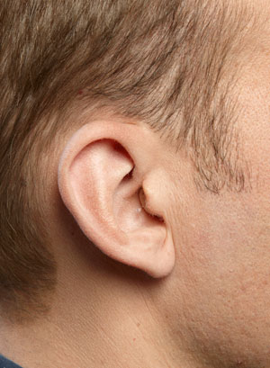 A CIC hearing aid on a man's ear